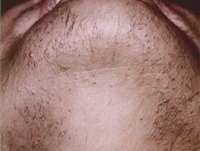 Chin Laser Hair Removal Before