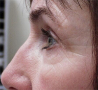 Scarring before microdermabrasion